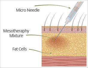 Hair Mesotheraphy